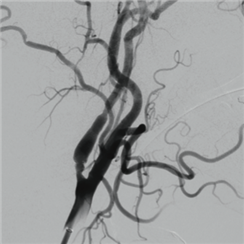 Retrieval of floating clot in the internal carotid artery: extracranial SAVE technique (eSAVE)