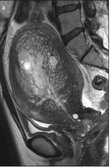 Uterine adenomyosis with extensive glandular proliferation: case series of a rare imaging variant