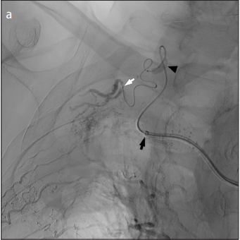 Embolization using warmed glue via the triaxial microballoon occlusion system for various vascular disorders